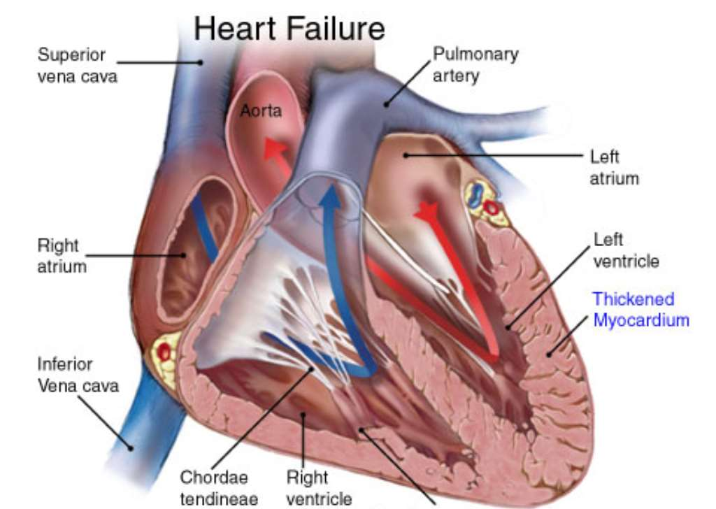 Are You Doing These 5 Frequent Problems On Your Heart